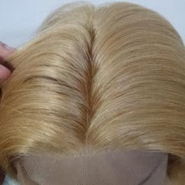 Le Blanc hair replacement alopecia universalis