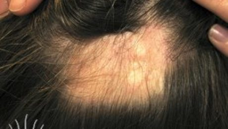 localized alopecia