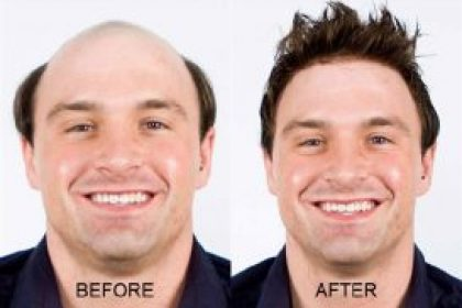 no surgical hair
