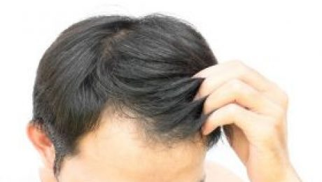 no surgical hair system
