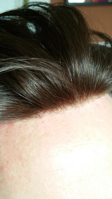 lace hair system