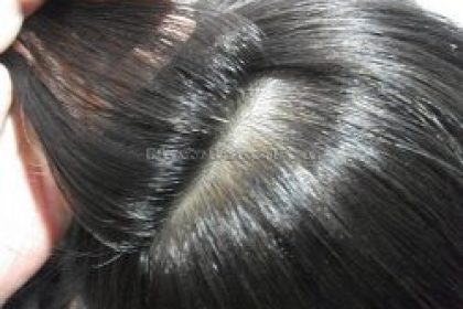 no surgical hair systems