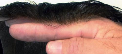 lace hairline system UK Baldness Banished